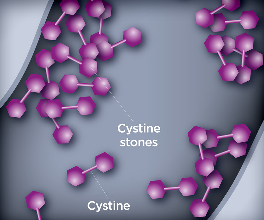 Picture of excess cystine